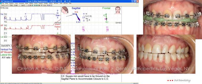Clayton A. Chan, DDS - Cranifacial Pain Orthopedic Dentistry Occlusion Connections 6