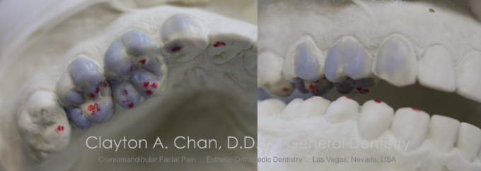 Clayton A. Chan, DDS - Las Vegas Cosmetic Dentistry Occlusion Connections 3b