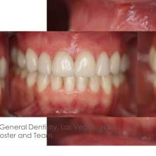 Clayton A. Chan, DDS - Las Vegas GNM Cosmetic Dentistry Occlusion Connections