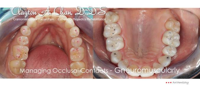 Clayton A. Chan, DDS - Las Vegas GNM Occlusion Connections