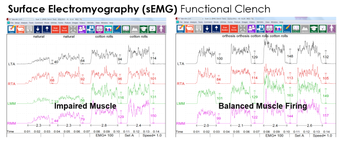 EMG K7 - Before and after orthotic - Clayton A. Chan, D.D.S.