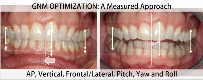 GNM Optimization A Measured Approach - Clayton A. Chan, DDS