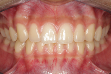 Healthy TMJ and Mandible Bone 2- Clayton A. Chan, DDS - GNM
