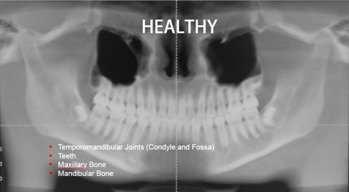 Healthy TMJ and Mandible Bone - Clayton A. Chan, DDS - GNM
