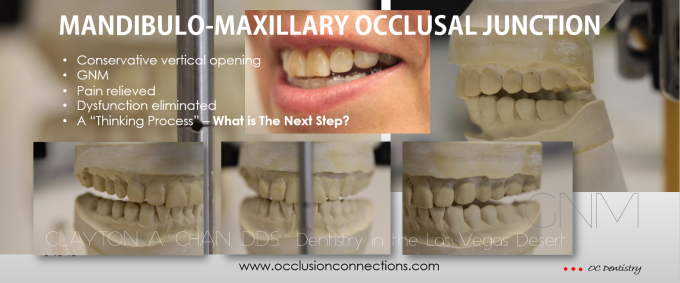 Mandibulo-maxillary occlusal junction - GNM