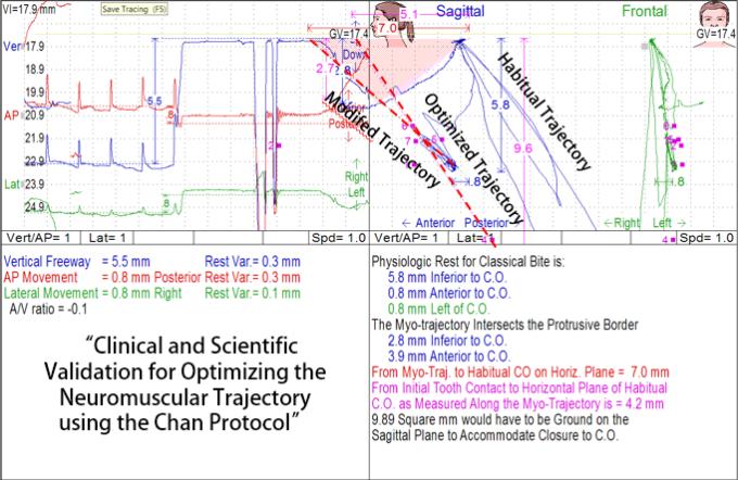 Myo- Habitual Optimized Trajectory Chan Protocol