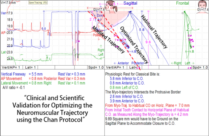 Myo- Habitual Optimized Trajectory Chan Protocol