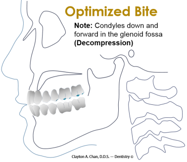 Optimized Bite - Clayton A. Chan, DDS