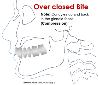 Over closed Bite - Clayton A. Chan, DDS