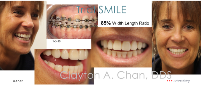 Trial smile - Clayton A. Chan, DDS v1