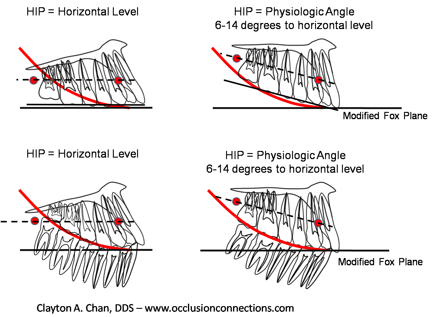 related keywords  u0026 suggestions for occlusal plane