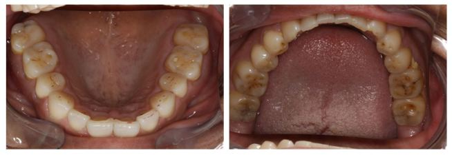 Before DO Occlusion Treatment - Clayton A. Chan, D.D.S.