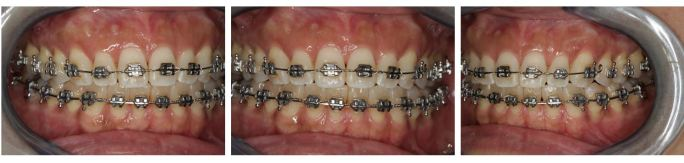 Ortho GNM Anterior Open Bite Closure - Clayton A. Chan, D.D.S.