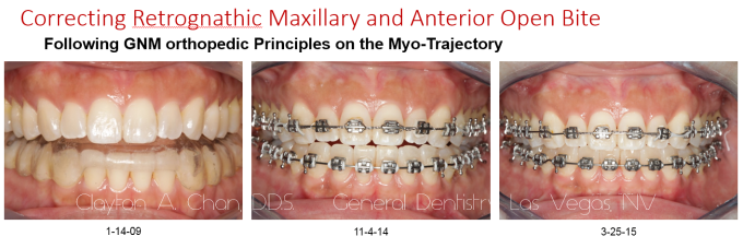 TMD Orthotic Maxillary Retro Ortho Correction 2 - Clayton A. Chan, DDS