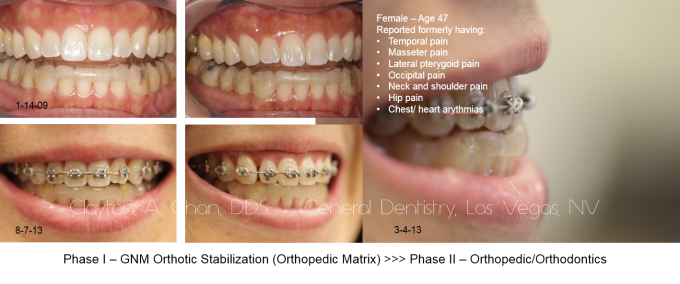 TMD Orthotic Maxillary Retro Ortho Correction - Clayton A. Chan, DDS