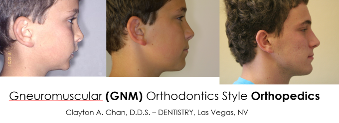 GNM Orthodontics - Clayton A. Chan, D.D.S. Dentistry