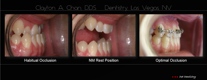 Ortho Expansion GG - Clayton Chan, DDS 11