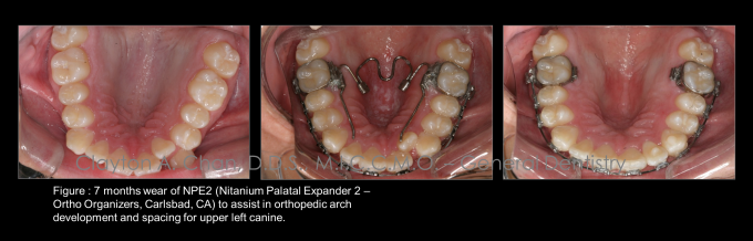 Ortho Expansion GG - Clayton Chan, DDS 2