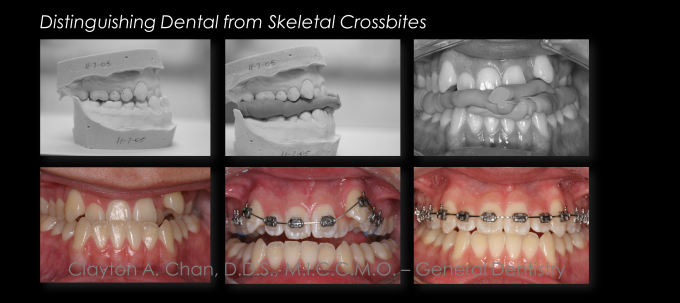 Ortho Expansion GG - Clayton Chan, DDS 3