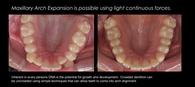 Ortho Expansion GG - Clayton Chan, DDS 4