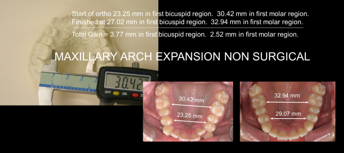 Ortho Expansion GG - Clayton Chan, DDS 5