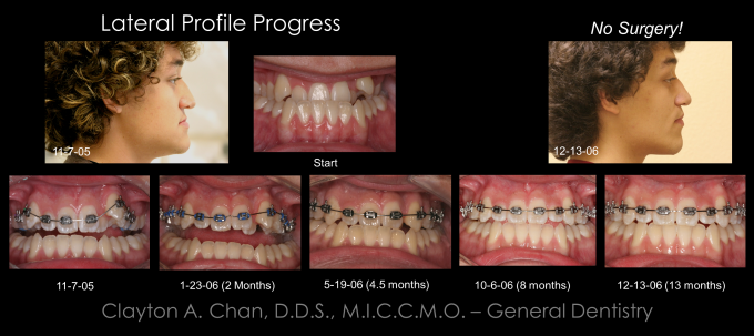 Ortho Expansion GG - Clayton Chan, DDS 6