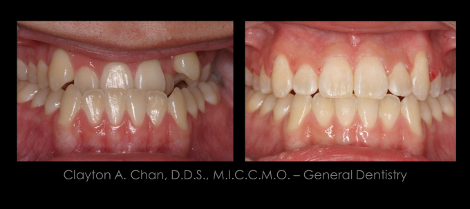 Ortho Expansion GG - Clayton Chan, DDS