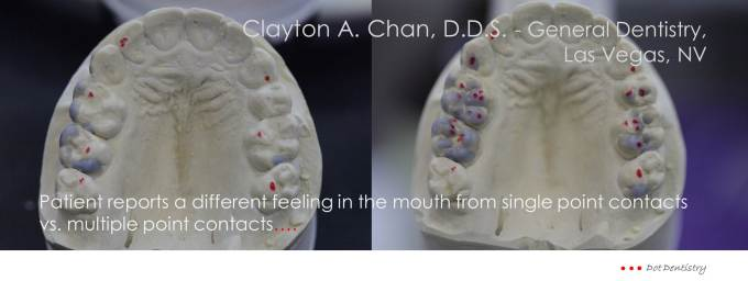 Clayton A. Chan, DDS - Las Vegas Cosmetic Dentist Occlusion Connections 1