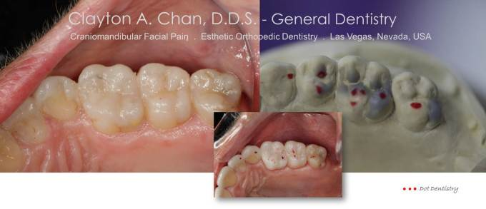 Clayton A. Chan, DDS - Las Vegas Cosmetic Dentistry Occlusion Connections 4