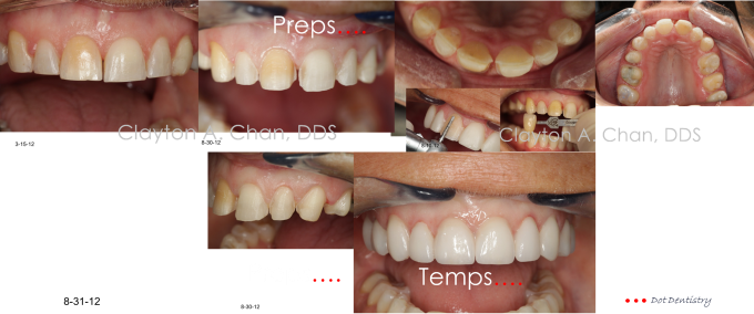 Clayton A. Chan, DDS - Las Vegas Cosmetic Dentistry Occlusion Connections 5b