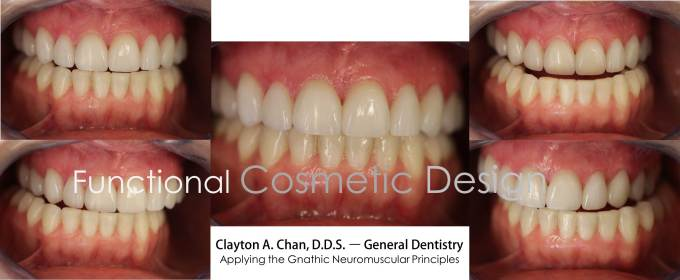 Clayton A. Chan, DDS - Las Vegas TMJ Cosmetic Dentistry Occlusion Connections 2