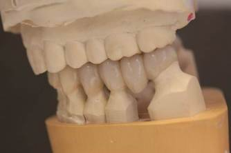 GNM Occlusion - Clayton A.  Chan, DDS 13