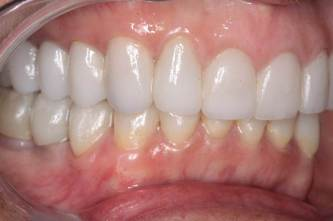 GNM Occlusion - Clayton A.  Chan, DDS 6