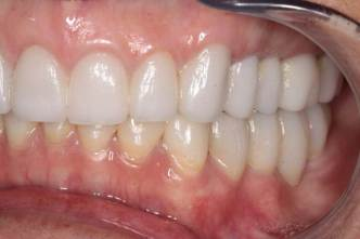 GNM Occlusion - Clayton A.  Chan, DDS 7