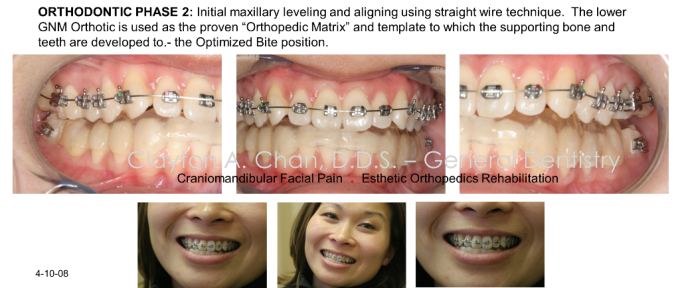 GNM Orthodontics- Occlusion Connections, Clayton A. Chan DDS 25