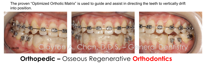 GNM Orthodontics- Occlusion Connections, Clayton A. Chan DDS 26