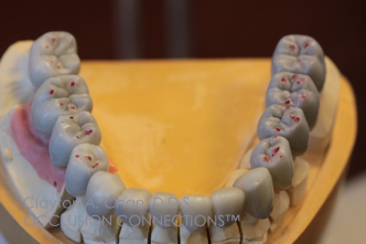Occlusal Waxing - Clayton  A. Chan, DDS - OCCLUSION CONNECTIONS