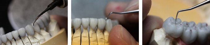 Occlusal Waxing - Clayton  A. Chan, DDS