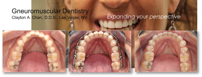 Orthodontic Arch Expansion - Clayton A. Chan, DDS GNM Ortho