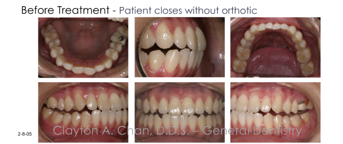 Posterior open bite - Occlusion Connections, Clayton A. Chan DDS 5