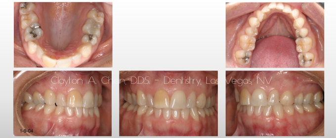 TMD Ortho Pain 3 - Clayton A. Chan, DDS