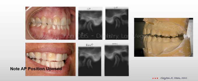 TMD Ortho Pain 6 - Clayton A. Chan, DDS