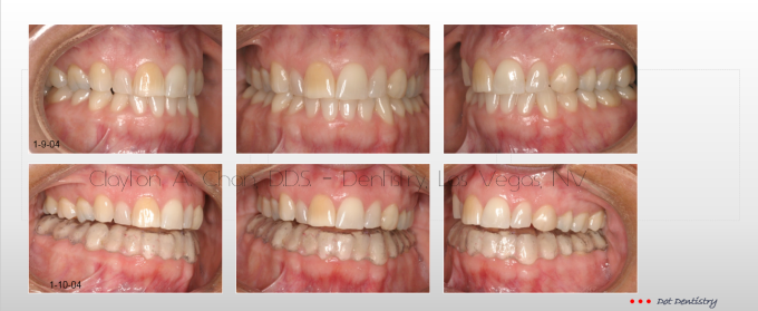 TMD Ortho Pain 7 - Clayton A. Chan, DDS