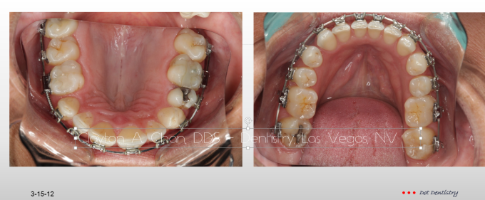 TMD Ortho Pain 8 - Clayton A. Chan, DDS