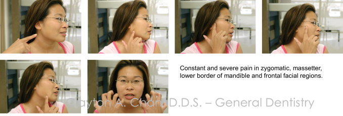 Zygomatic Facial Pain - Occlusion Connections, Clayton A. Chan DDS 1
