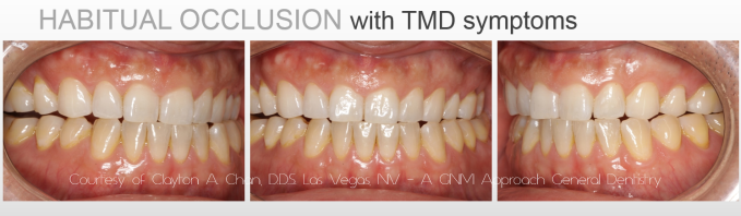 Before GNM Treatment - Clayton A. Chan, D.D.S.