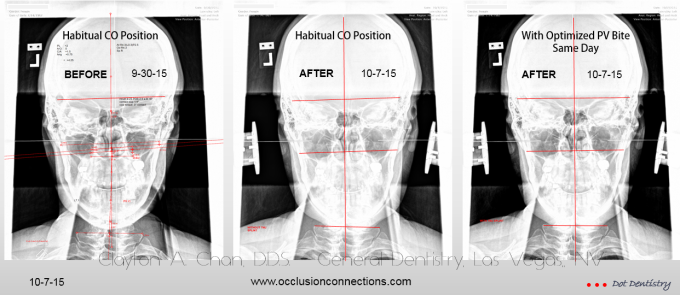 Cranio Atlas Vertebral Alignment - Clayton A. Chan, DDS