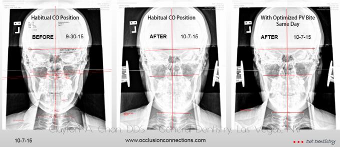 Cranio Atlas Vertebral Alignment - Clayton A. Chan, DDS