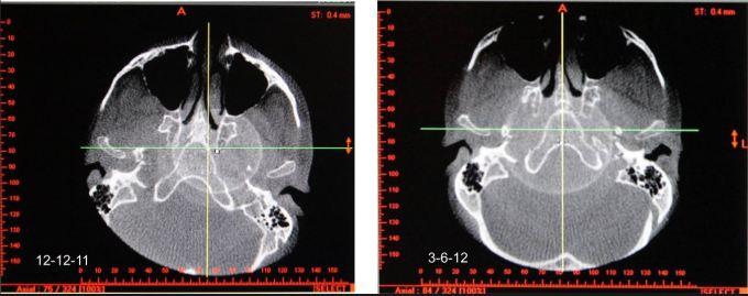 Cranial Cervical Distortions - Optimized Bite GNM