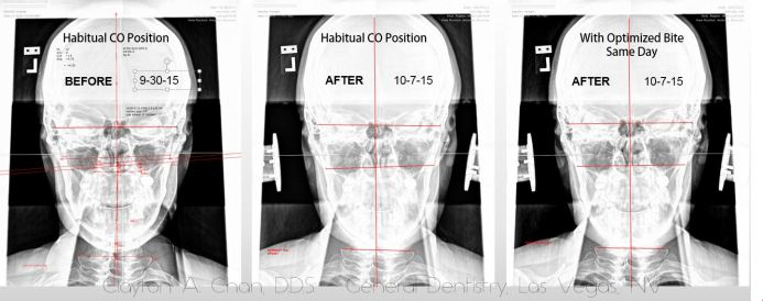 Cranial Mandibular Distortions with GNM - Clayton A. Chan, DDS